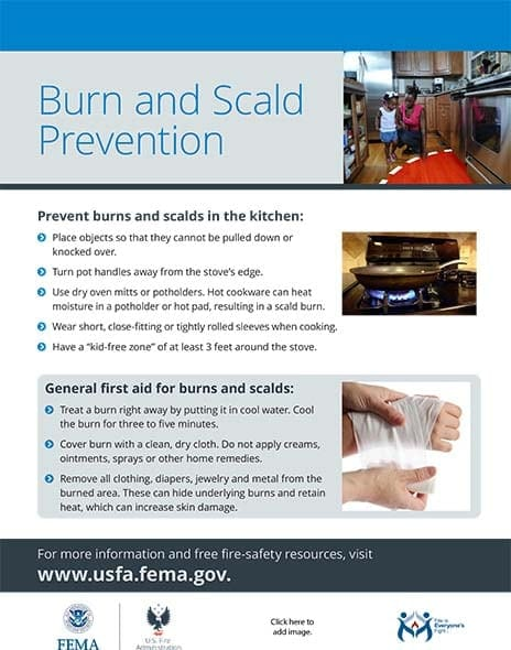 burn safety handout